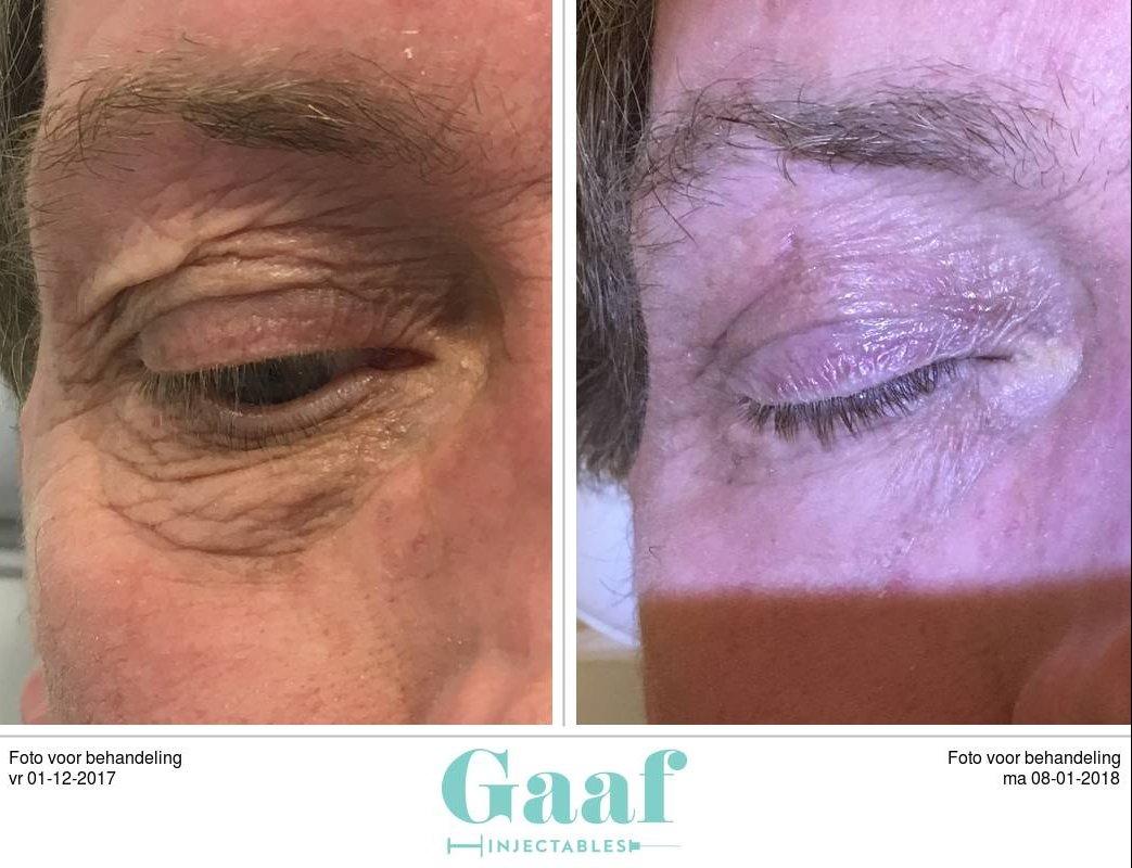 plexr den haag ooglidcorrectie botox den haag fillers den haag dermapen den haag peeling den haag skinboosters den haag