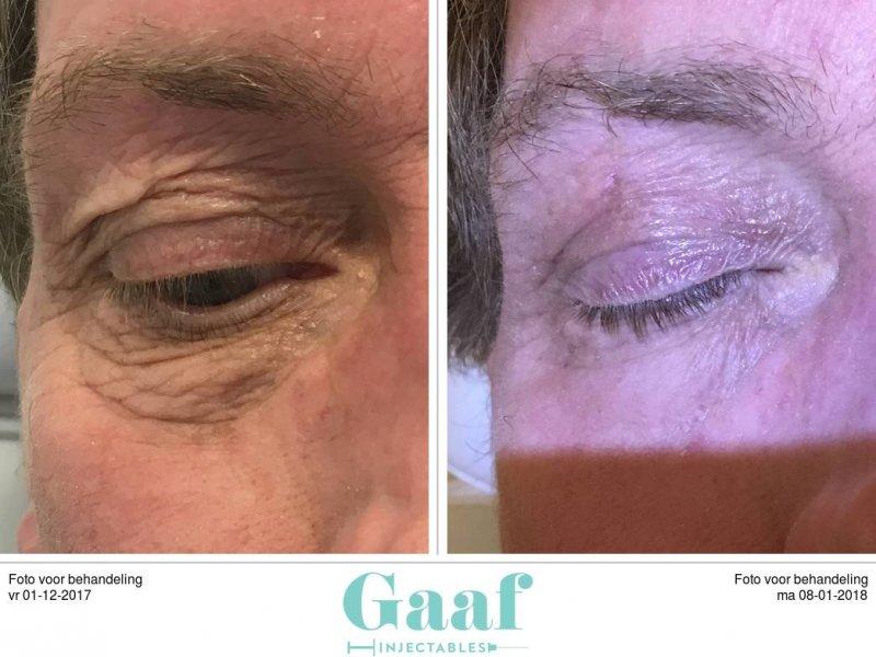 plexr ooglidcorrectie en botoxbehandelingen