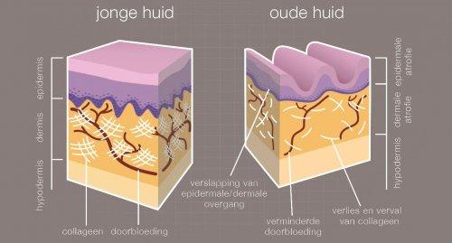rimpels verwijderen rimpels verminderen rimpels tegengaan rimpelbehandelingen