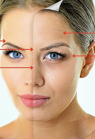 botox den haag botox lippen botox prijzen