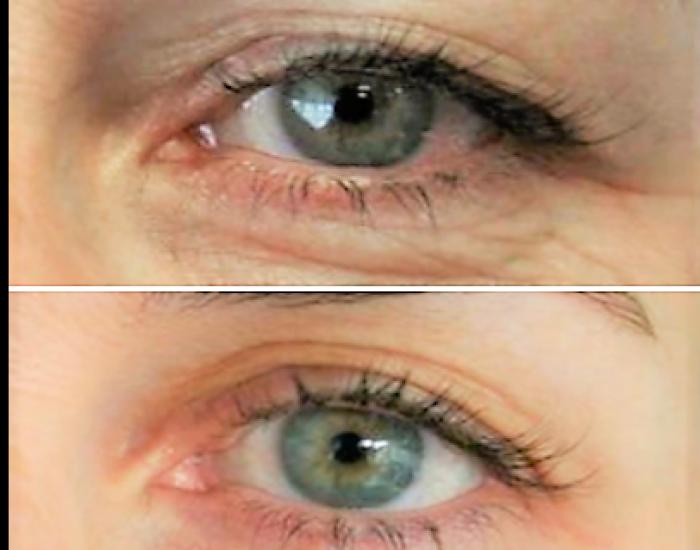 ooglidcorrectie plexr wenkbrauwlift