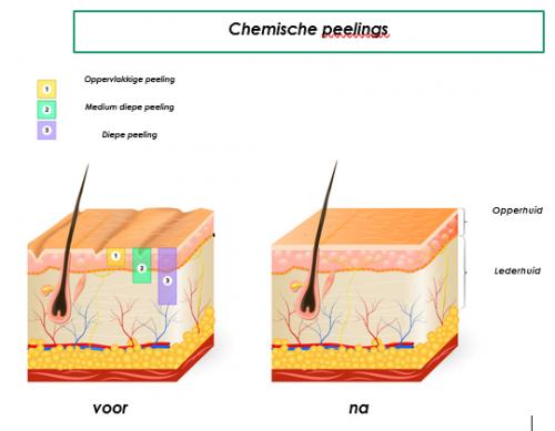 chemische peeling peelings den haag tca peeling den haag gezichts peeling