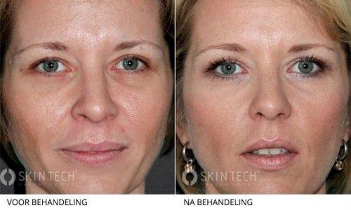 easy droxy peeling peelings den haag chemische peelings den haag tca peeling den haag gezichts peeling