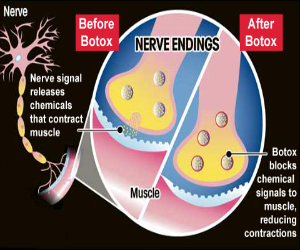 botuline toxine zwangerschap