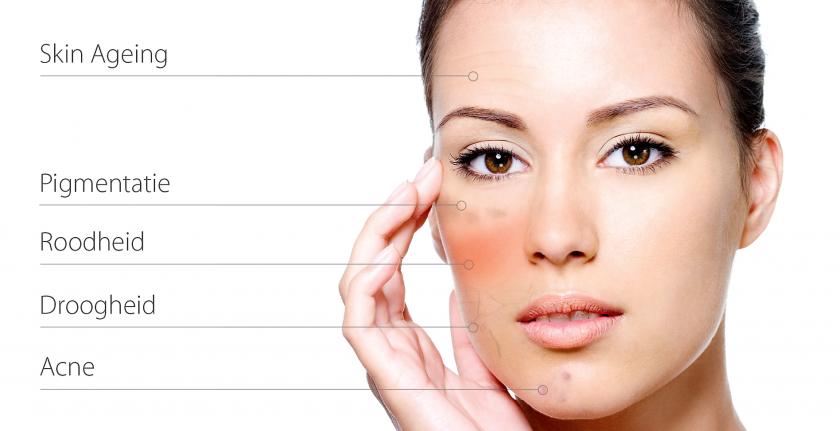 peelings den haag chemische peelings den haag tca peeling den haag gezichts peeling