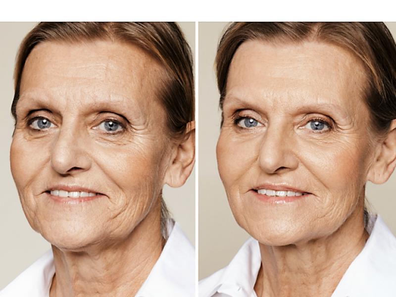 Skin booster voor en na restylane skinbooster behandeling skinbooster prijs skinbooster den haag