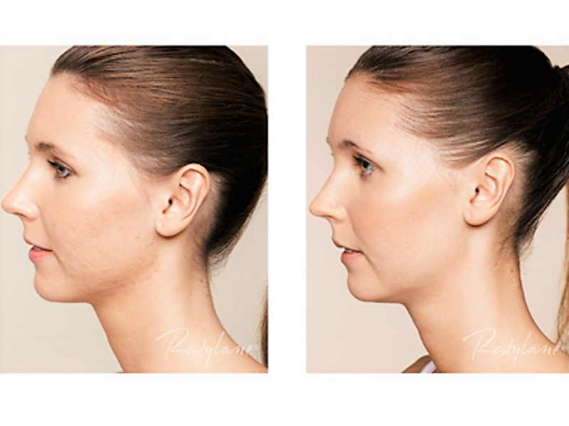 skinboosters voor en na foto's acne skinboosters den haag