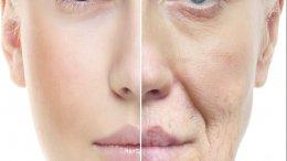 Botox den haag fillers den haag Plexr Den Haag profhilo peelings skinboosters wallen botox lippen dikke lippen botox voorhoofd voorhoofdsrimpels kraaienpootjes wallen migraine overmatig zweten hyaluronzuur