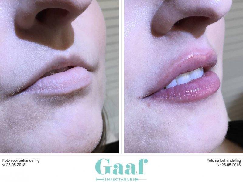 botox den haag fillers den haag lippen opvullen den haag lipfillers den haag dikke lippen volle lippen