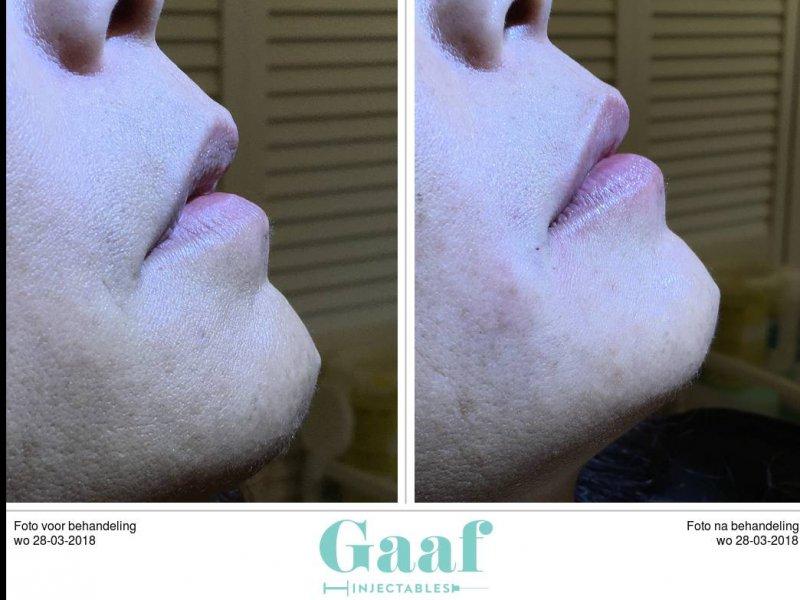 lippen opvullen den haag volle lippen dikke lippen botox lippen lipfillers lipvergroting hyaluronzuur fillers den haag
