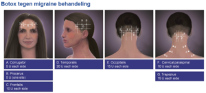 migraine hoofdpijn botox den haag