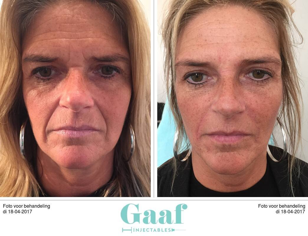 filler neuslipplooi en wb lift botox