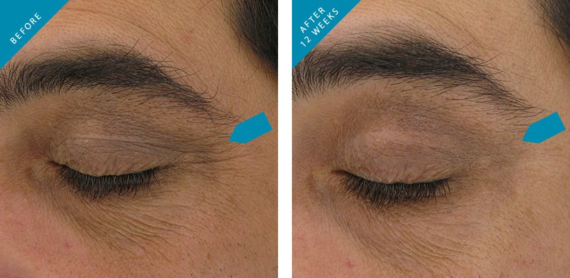 Skinceuticals CE Ferulic Skinceuticals AOX eye gel