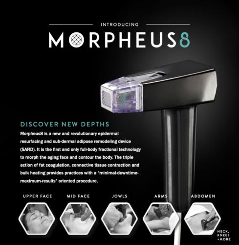 Morpheus8 behandeling prijzen
