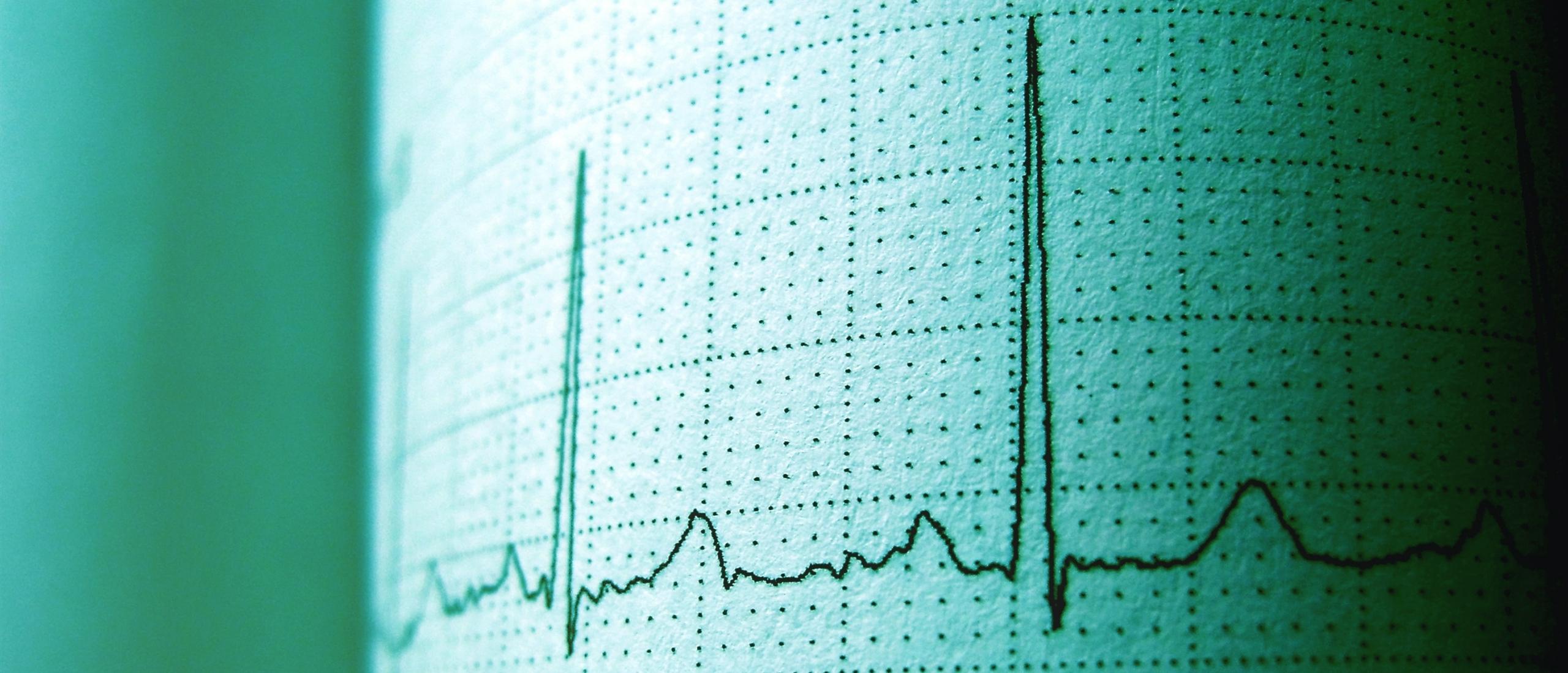 Veel voorkomende hartritmes op de IC