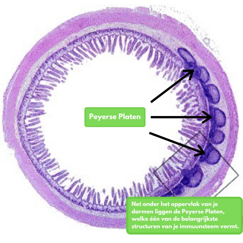 Immuunsysteem darmen peyerse platen
