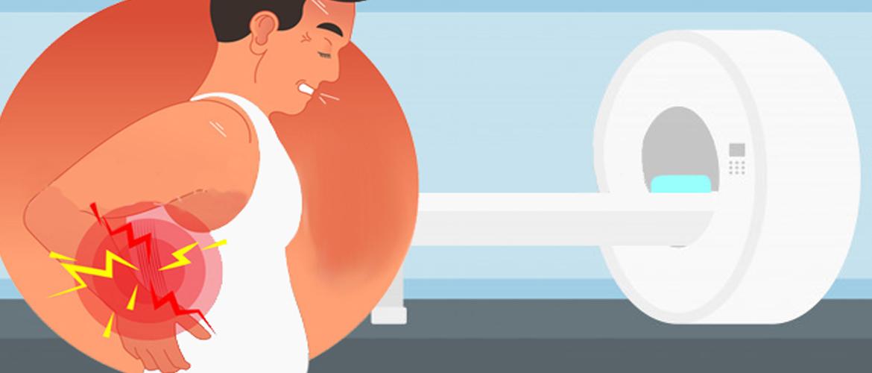 Een osteopaat heeft niet altijd een MRI nodig om lagerugpijn te behandelen