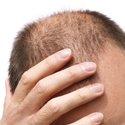 Haartransplantatie behandelingen