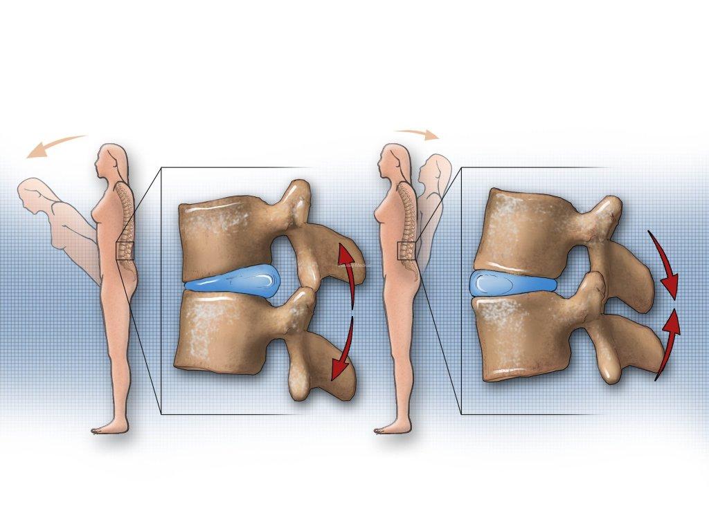 Hernie de disc - tratament naturist fara operatie