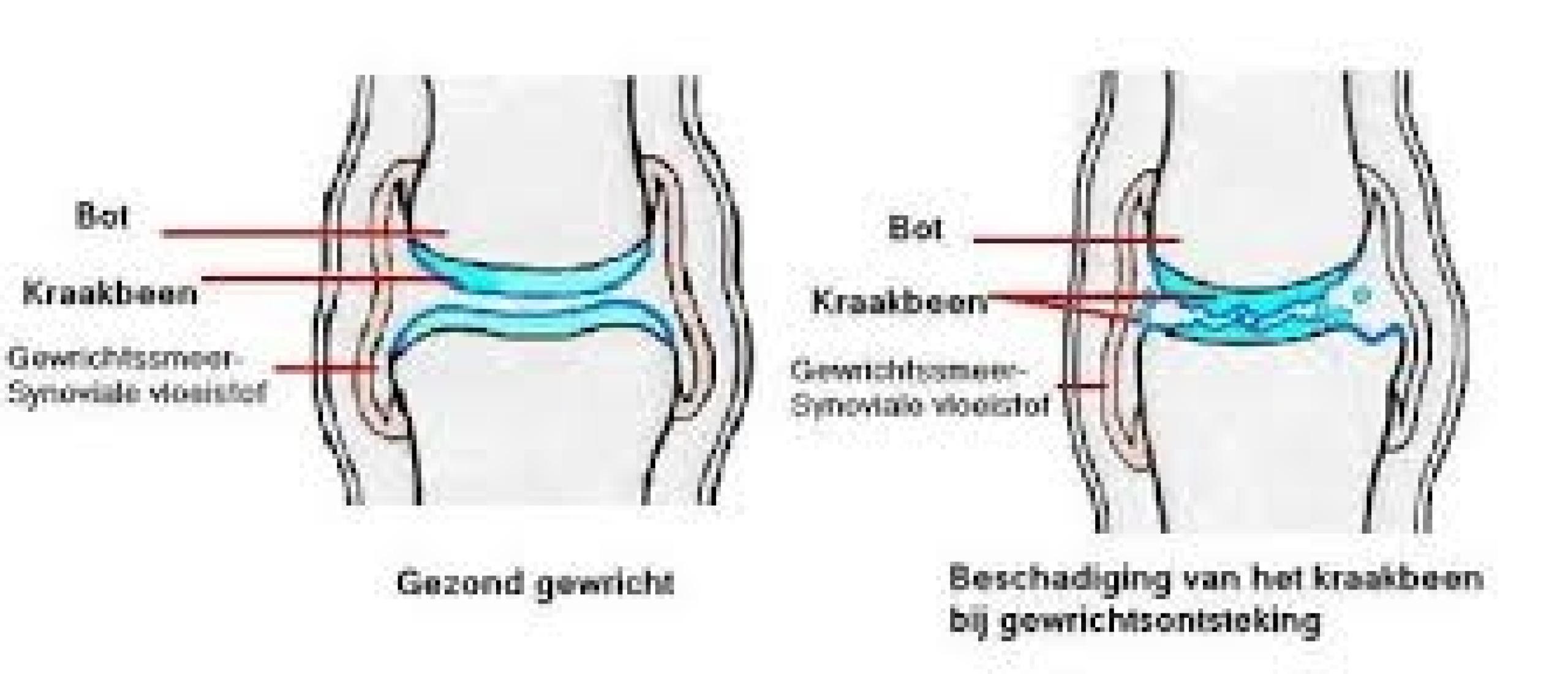 Artrose en hoe magneetveldtherapie daarbij kan ondersteunen