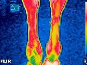 warmtebeeld van beenblessure voor magneetveld behandeling