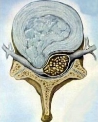 hernia in de rug