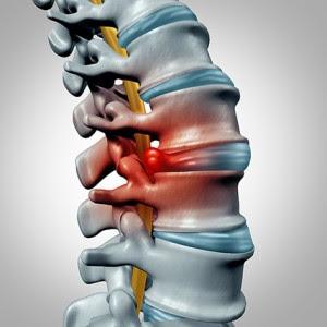 hernia kan goed behandeld worden met pemf