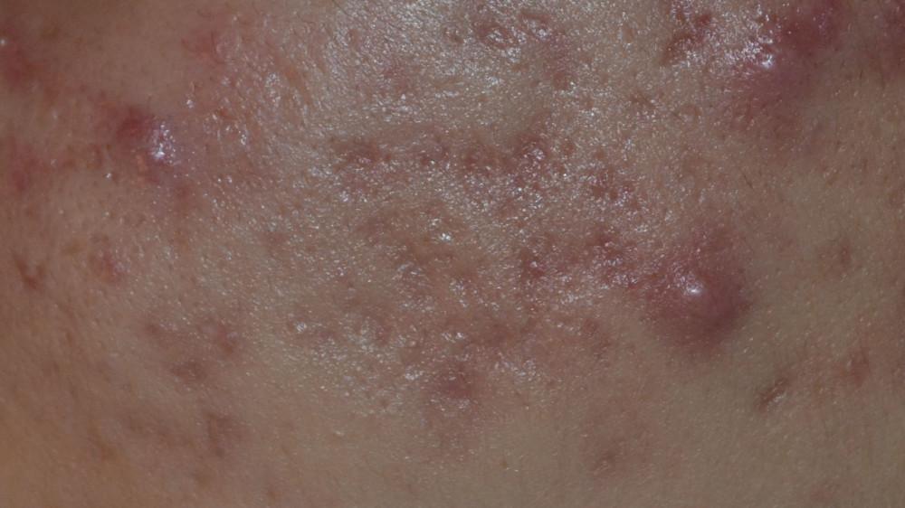 rest-acne-littekens-na-doormaken-acne-conglobata-gezicht-arabische-vrouw