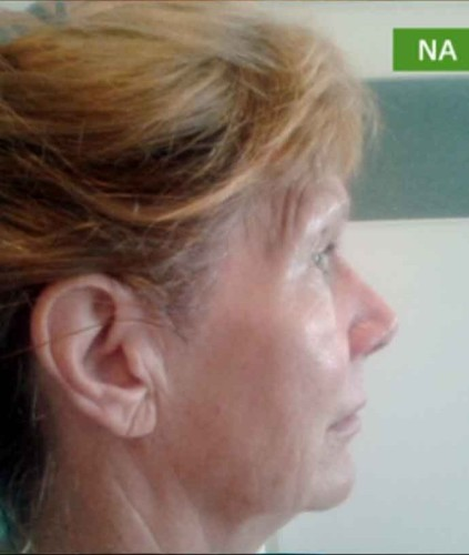 Behandeling !QMS MEDICOSMETICS of !QMS ANTI-AGING
