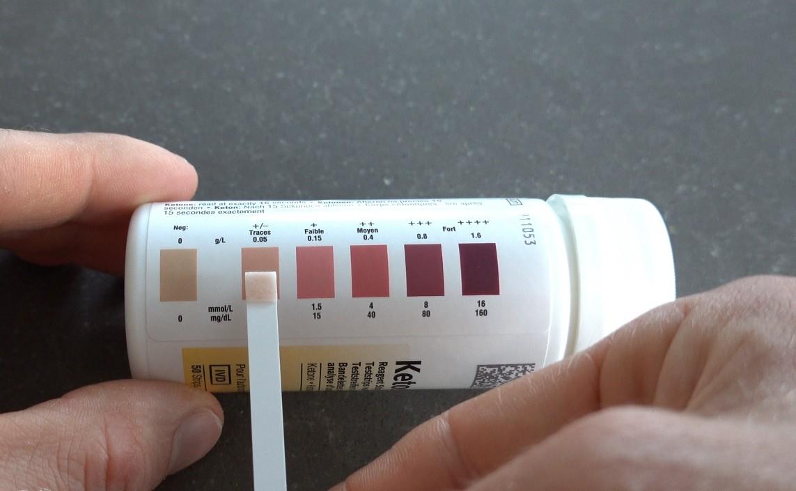 ketostix test resultaat