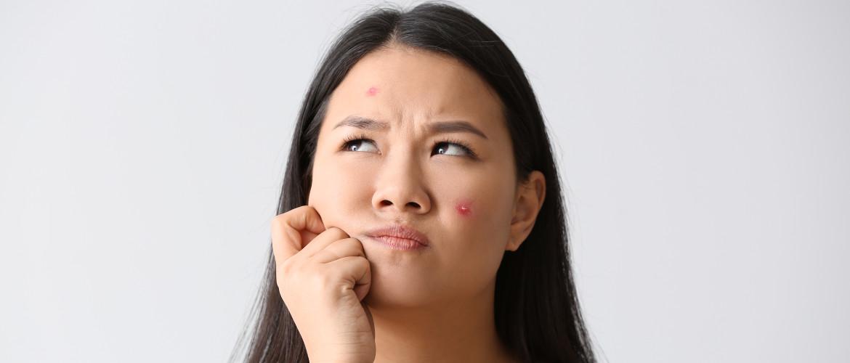 Helpt zonlicht tegen acné? Ja én nee…
