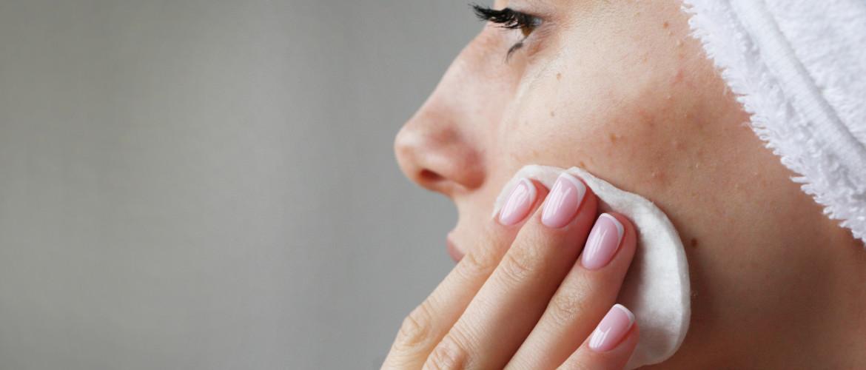 Hoe verzorg je een acnéhuid? Niet knijpen, wél reinigen