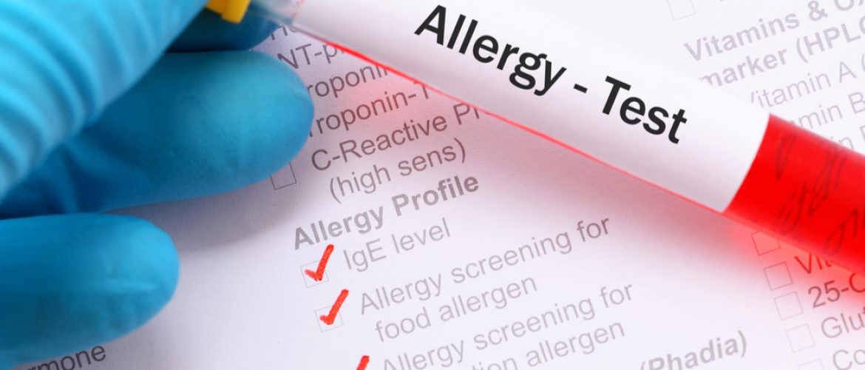 Alles over allergie: ik heb toch al een allergietest gehad?