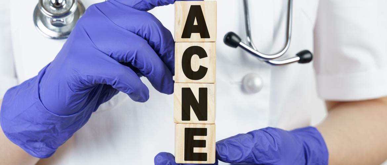 Wanneer moet ik met mijn acne naar de dermatoloog?