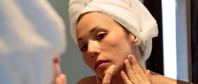 Littekens of rode plekken na acne. Dit kun je er tegen doen.