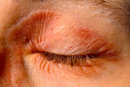 atopisch eczeem contactallergie