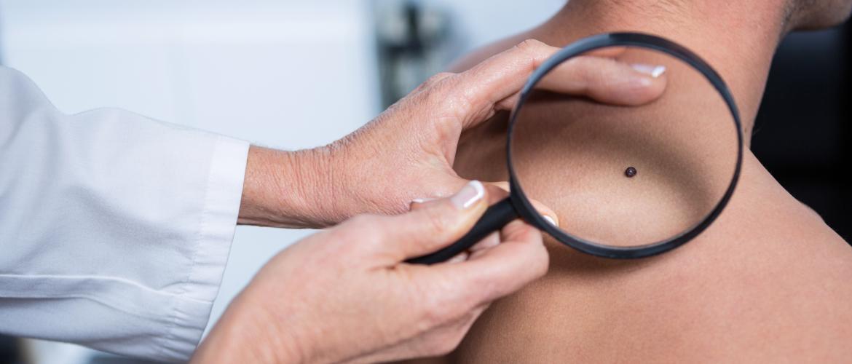 Wat is een melanoom en kun je er iets aan doen om dit te voorkomen?