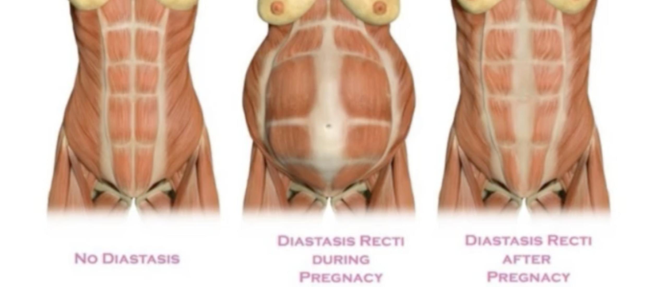 Wat is Diastase