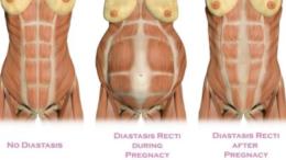 Diastase