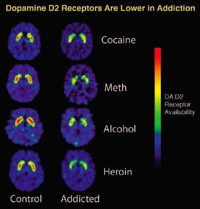 dopamine receptoren in verslaafden