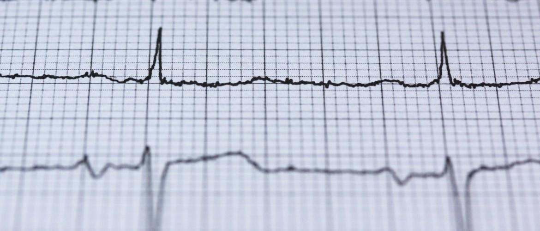 Hartkloppingen als gevolg van stress, 4 tips!