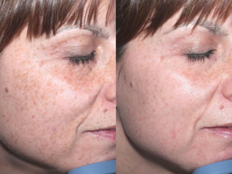 voor en na foto pigmentvlekken behandeling