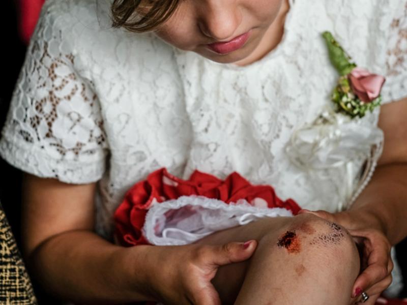 Bruidsmeisje valt gat in knie op bruiloft
