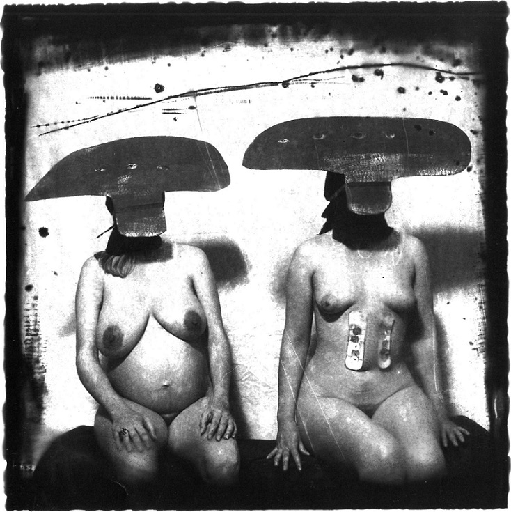 Joel-Peter Witkin 2 Women With Stomach Irritations