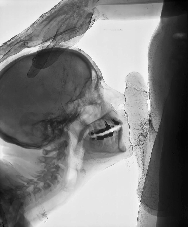 Wim Delvoye: Kiss. 2001 Cibachrome on aluminium.