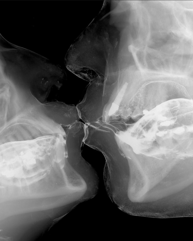 Wim Delvoye: Kiss 4. 2001. Cibachrome on aluminium.