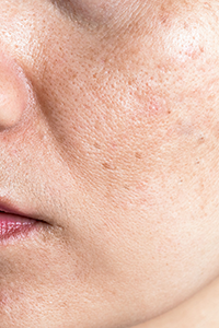 Hoe maak je donkere littekens lichter