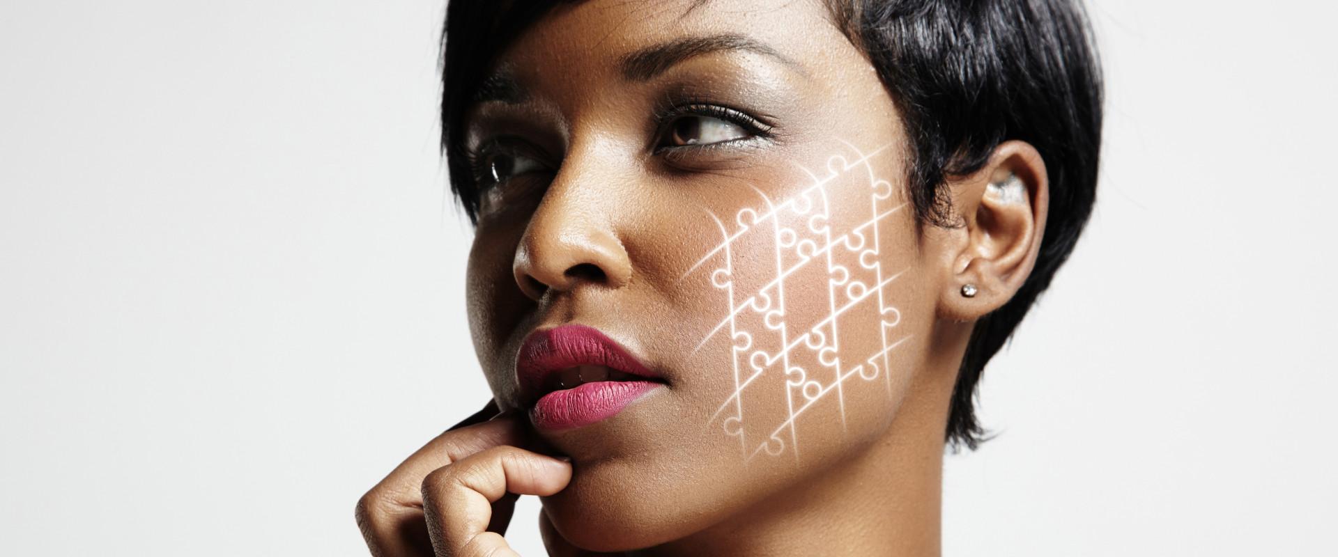 Behandeling hyperpigmentatie donkere huid