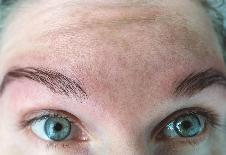 hyperpigmentatie in het gezicht