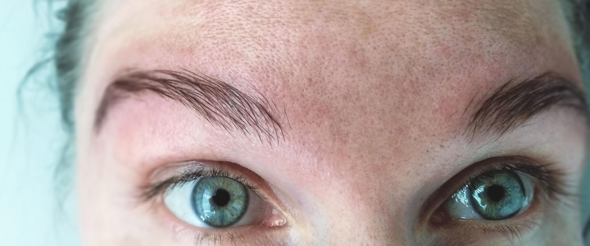 Hyperpigmentatie in het gezicht | Tips die helpen